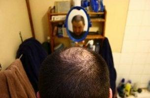 Tricotilomanía la compulsión de arrancarse el cabello