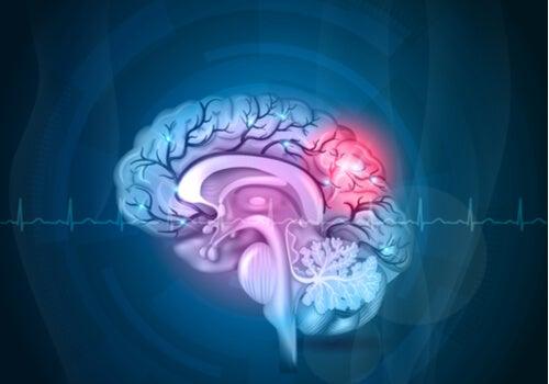 Amígdala del cerebro