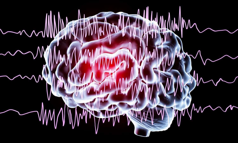 cerebro que evidencia Trastorno neurológico funcional