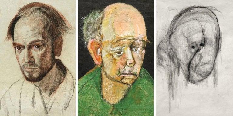 La evolución de la enfermedad el Alzheimer a través del arte