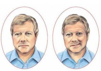 Asimetría facial en el ictus