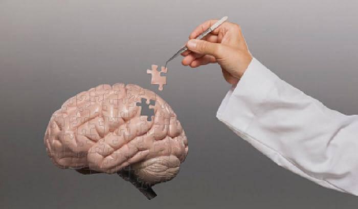 cerebro-puzzle
