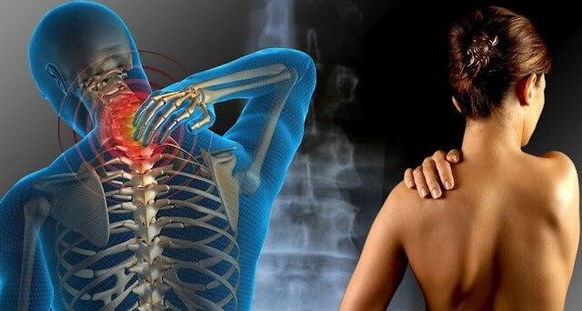 dor na fibromialgia