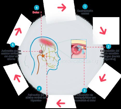 causas del dolor de las migrañas