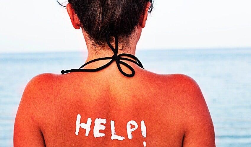 tanorexia piel quemada