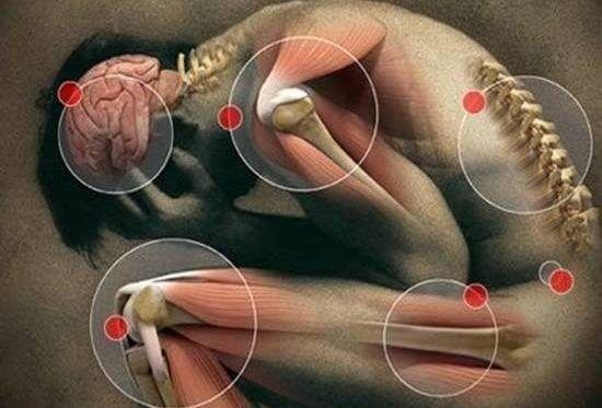 fibromialgia enfermedad crónica