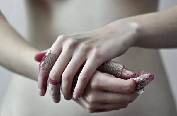 Manos heridas