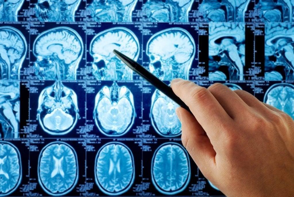 Escáner cerebro