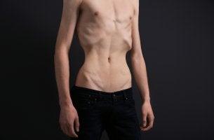 Hombre con anorexia