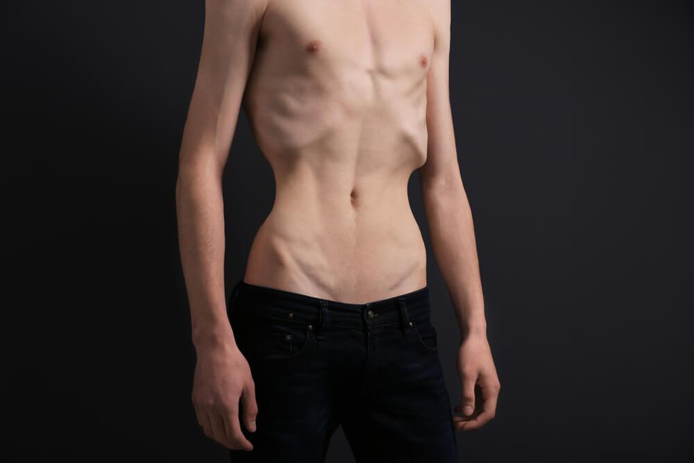 ¿Es la anorexia masculina diferente de la femenina?