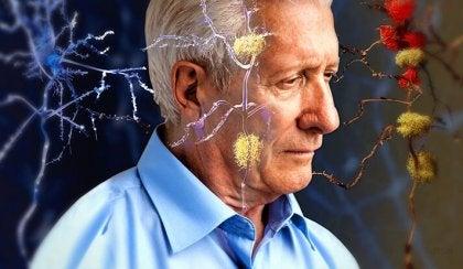 Hombre mayor con alzheimer que necesita omega-3
