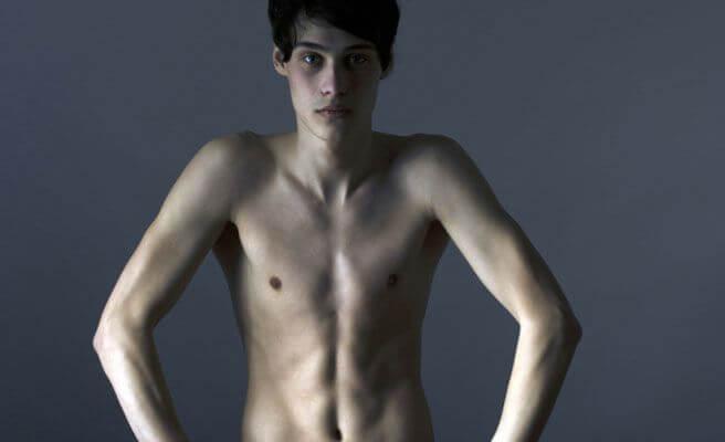 adolescente con anorexia