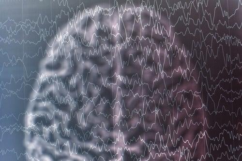 Cerebro con dibujo de ondas cerebrales