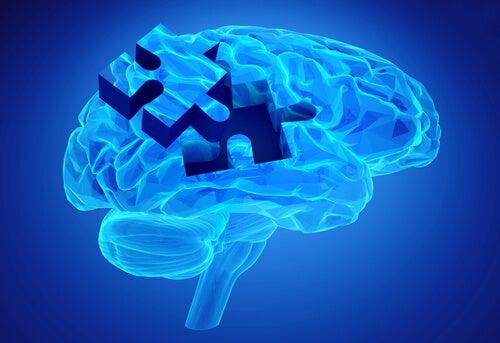 Cerebro con una pieza de puzzle