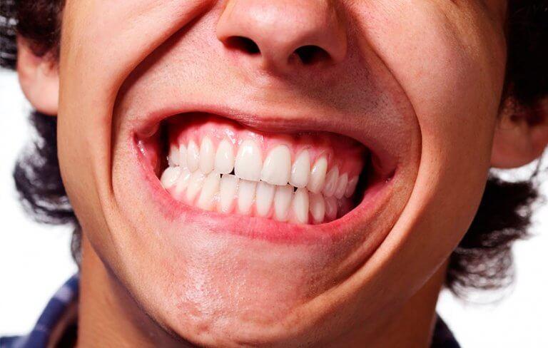 Hombre apretando los dientes
