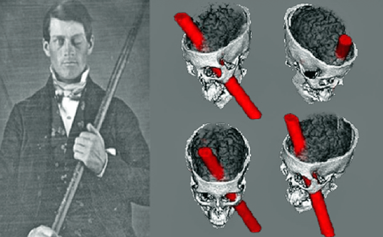 Phineas Gage: clinical cases about the brain