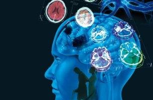 Cerebro de una persona con esclerósis múltiple