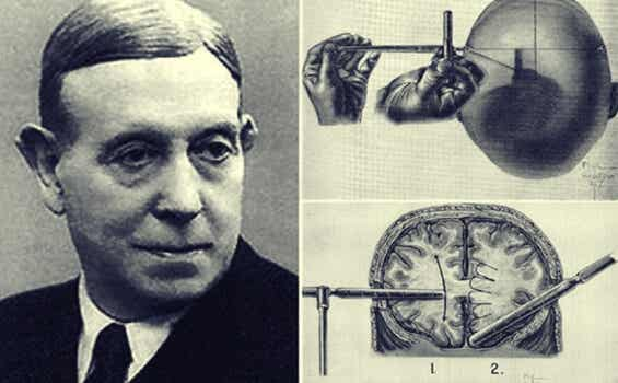 Egas Moniz y la impresionante historia de la lobotomía