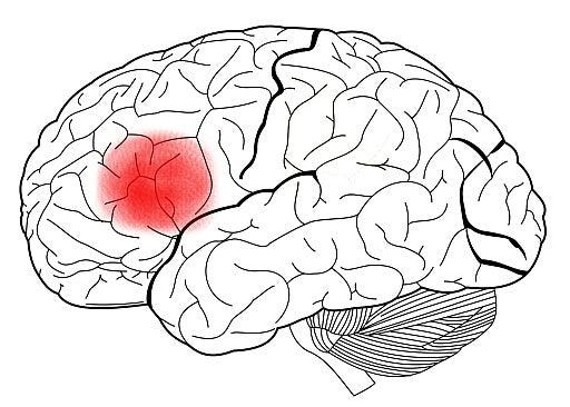 Cerebro con el área de Broca señalada en rojo