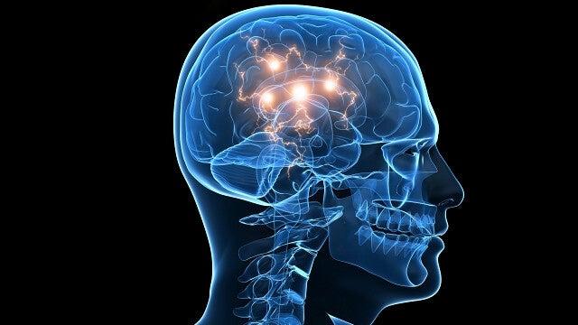cerebro representando el mecanismo de acción del Deprax