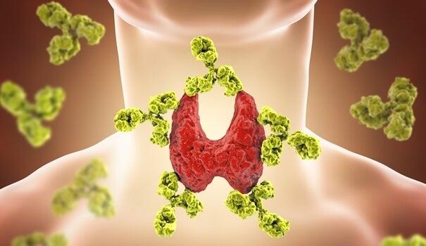 Alteración en la tiroides