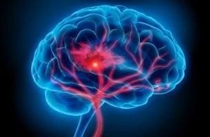 cerebro que sufre un síndrome serotoninérgico