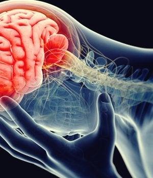 cerebro inflamado representando la teoría inflamatoria de la depresión