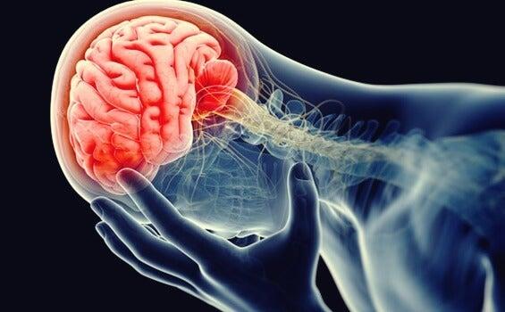cerebro inflamado representando los aspectos psicológicos de la diabetes