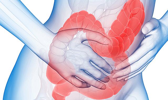 intestino simbolizando la relación entre el estrés y el síndrome de colon irritable