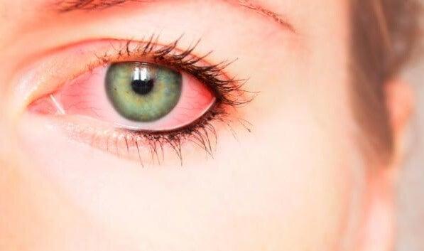 derrame ocular producido por la violencia psicológica