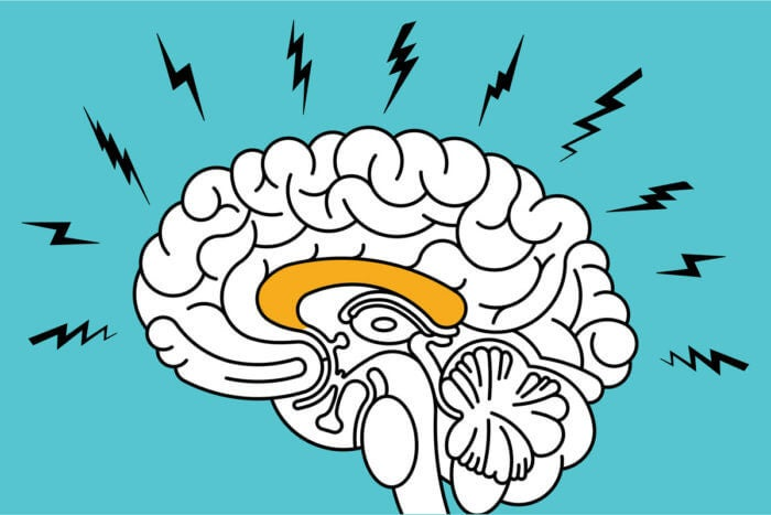 imagen representando el impacto de la ansiedad en el cerebro