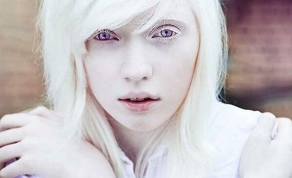 Personas albinas: más allá del aspecto físico
