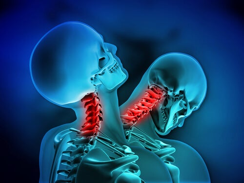 Dos esqueletos con el cuello
