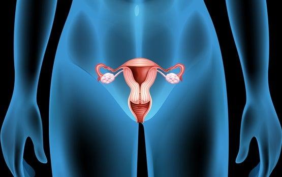 Quistes ováricos: síntomas, causas y tratamientos