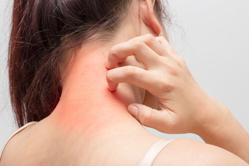 Mujer con dermatitis atópica en el cuello