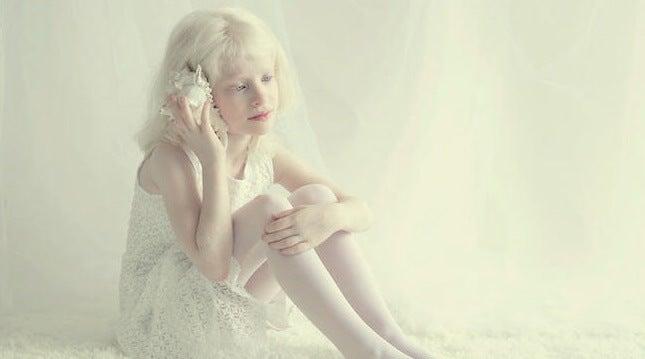 niña representando a las personas albinas