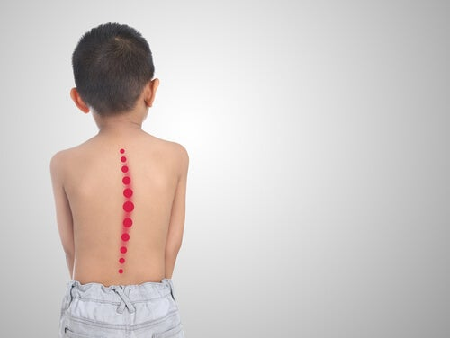 Niño con escoliosis