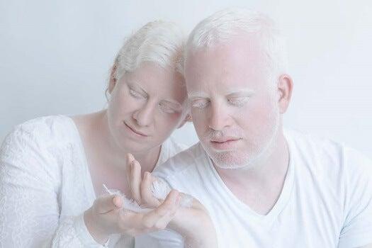 pareja de personas albinas