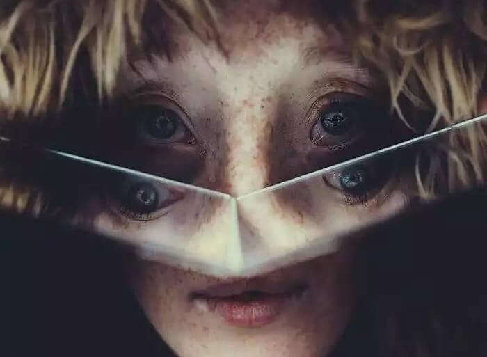chica con malformación facial