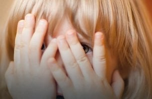 niña con malformación facial