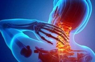 Persona con dolor en espalda