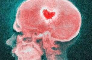 imagen de una radiografía simbolizando nuestro cerebro en una ruptura