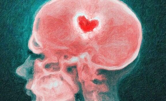imagen de una radiografía simbolizando cómo el cerebro  va del amor al odio