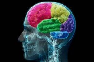 Cerebro humano de colores