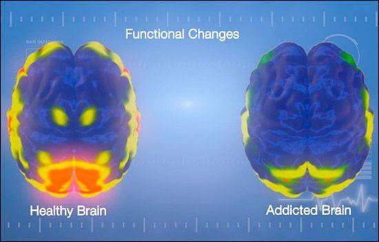 cerebro adicto y cerebro sano