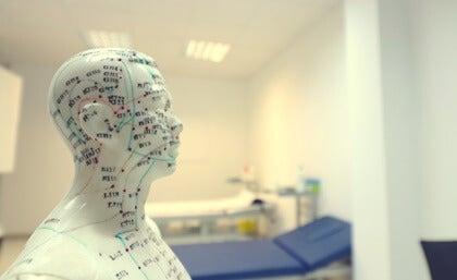 Tratamiento de acupuntura para las enfermedades neurodegenerativas