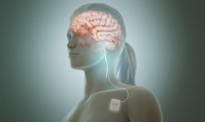 La estimulación del nervio vago reduce los síntomas de la depresión