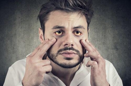 Hombre con ictericia por el síndrome de Gilbert
