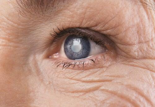 Operación de cataratas: ¿cómo asimila el cerebro los cambios visuales?