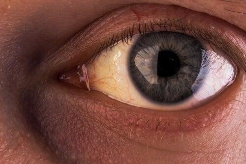 El síndrome de Gilbert: común, pero desconocido